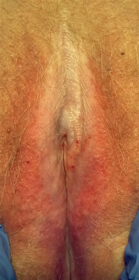 Small cut on vagina jpg 700x1407